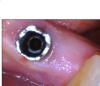 Pilier_sur_implant_osseospeed_2_wlktak