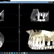 Implant_xtw7e5