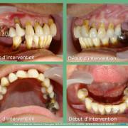 Pose_d_implants_et_d_un_bridge_%c3%a0_armature_m%c3%a9tal_en_1_seule_intervention_g.noachovitch-positdental-005_ftstow