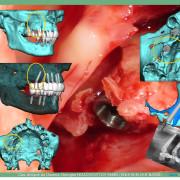 Pose_d_implants_et_d_un_bridge_%c3%a0_armature_m%c3%a9tal_en_1_seule_intervention_g.noachovitch-positdental-012_h0u8m0