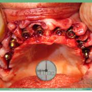Pose_d_implants_et_d_un_bridge_%c3%a0_armature_m%c3%a9tal_en_1_seule_intervention_g.noachovitch-positdental-014_v0ncpa