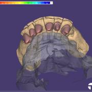 2020-08-25_00007-001_dentalcadscreenshot.pngfranchi_posto_tgeukt