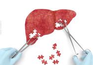 Hepatitisy7a7pa