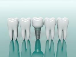 Minimalinvasiven Techniken sind besonders schonend und sorgen für festsitzenden und dauerhaften Zahnersatz. - (c) viperagp Fotolia