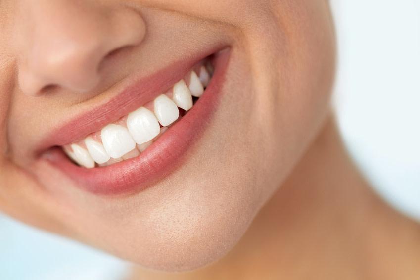 Strahlend weiße Zähne sind schon lange ein Schönheitsideal. - (c) puhhha Fotolia