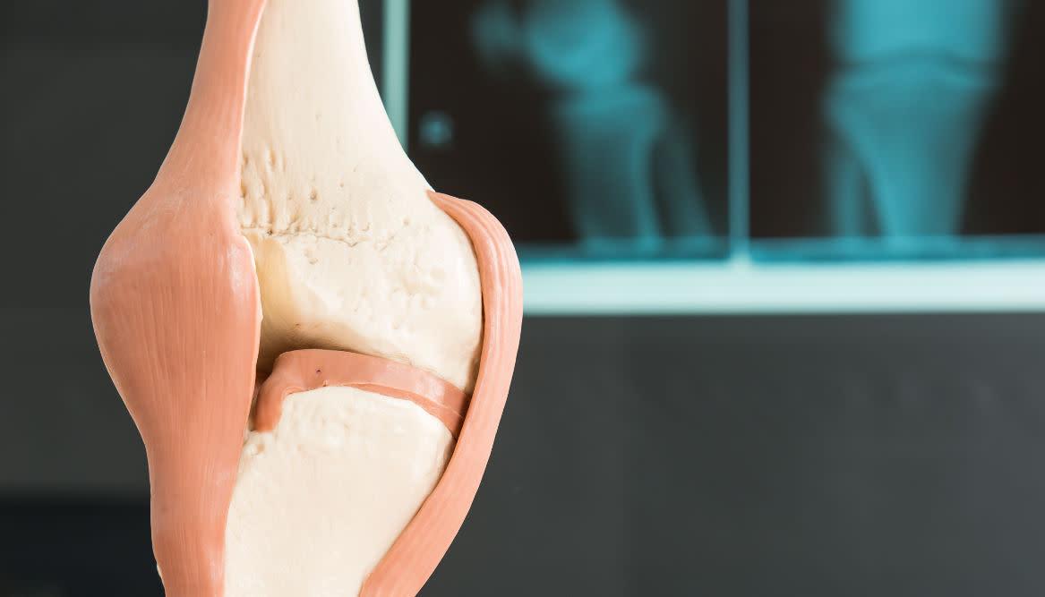 Knie, Hüfte, Hände und Zehen sind besonders häufig von Arthrose betroffen. / ©Racle Fotodesign - stock.adobe.com