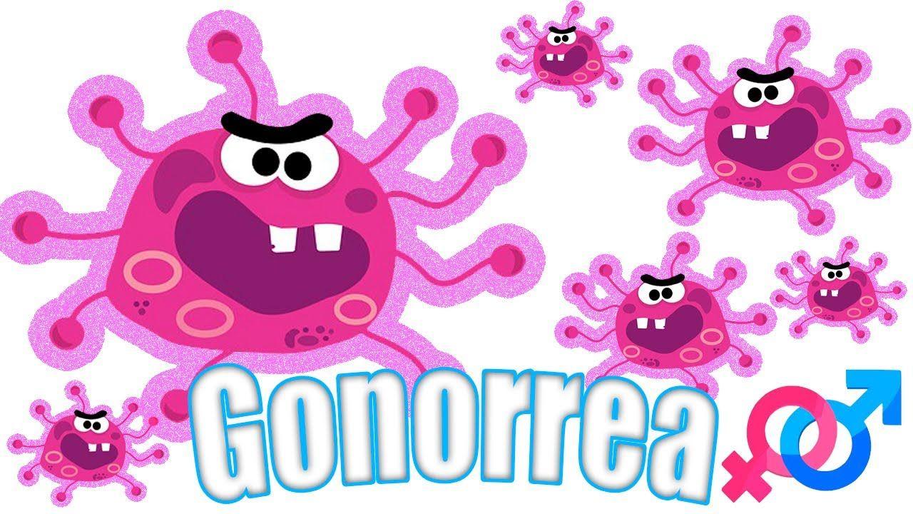 Infección  por gonorrea.