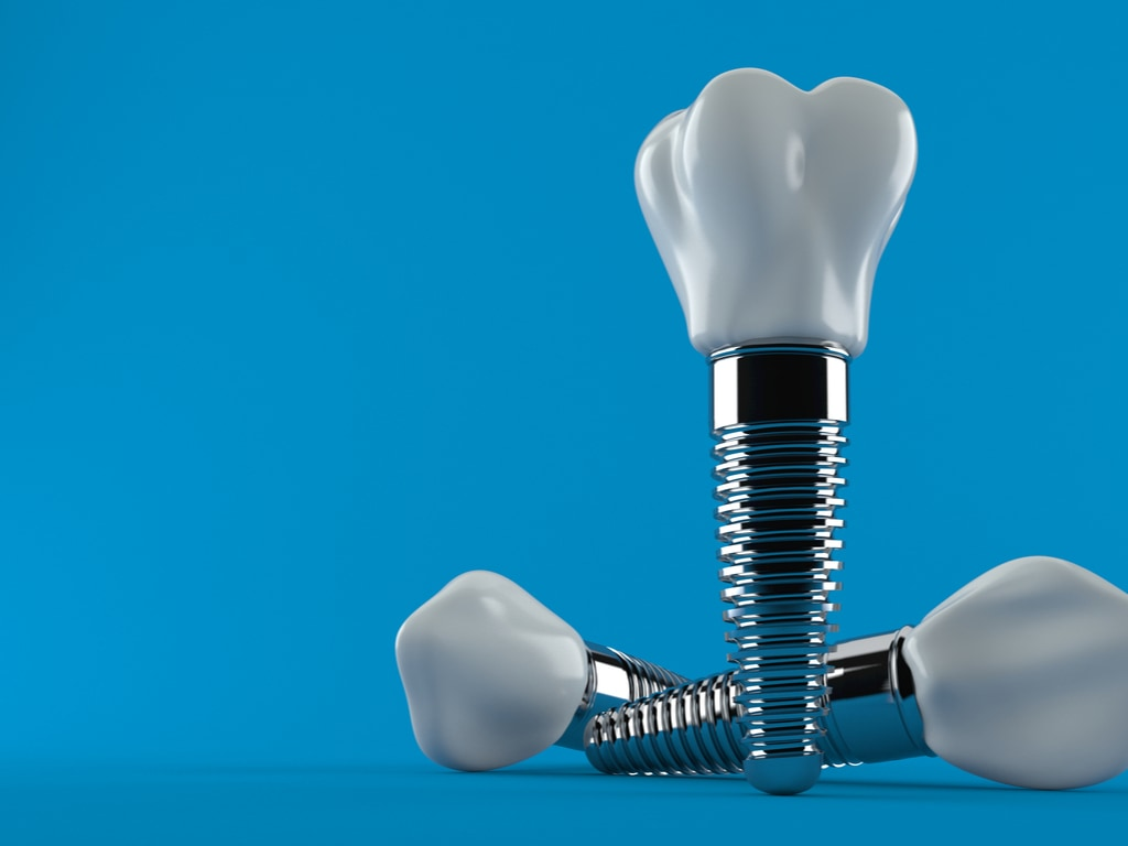 implants dentaires sur fond bleu