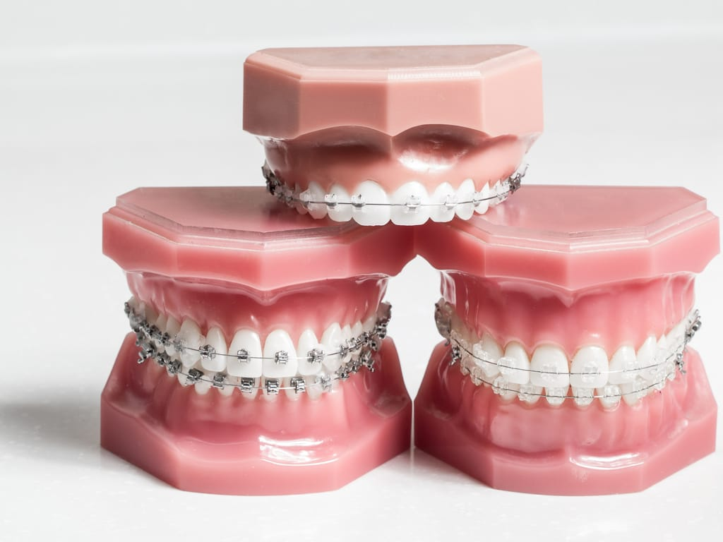 les appareils dentaires