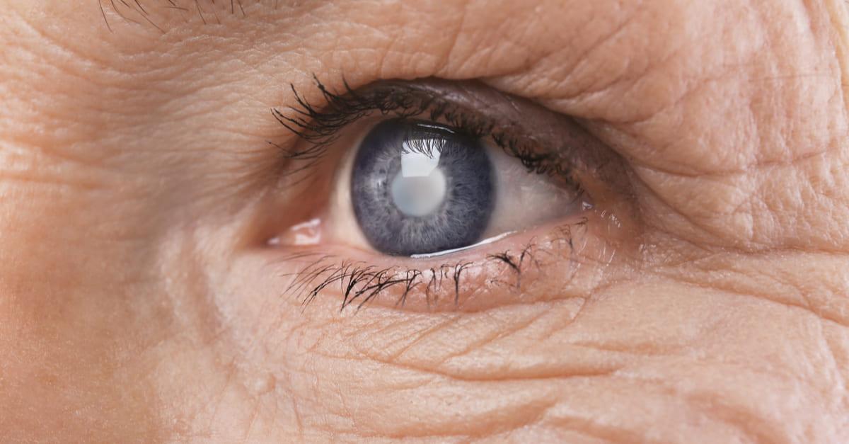 Chirurgie cataracte Bagnolet Ophtalmologie