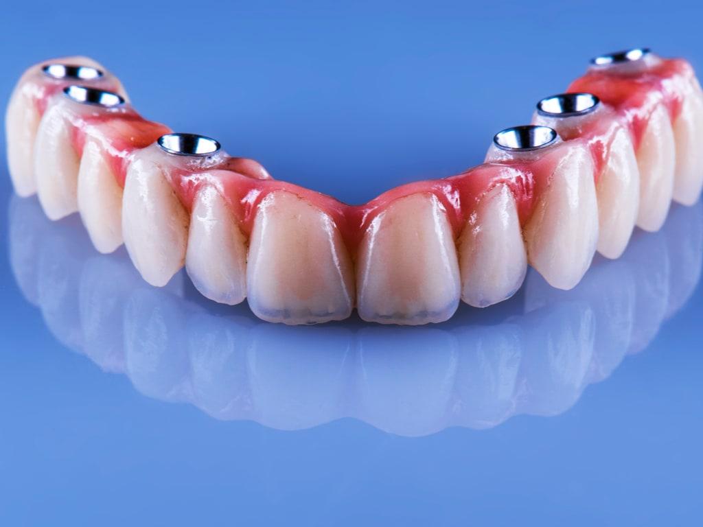 bridge dentaire complet sur implants