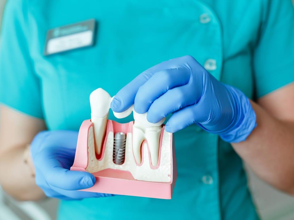 assistante dentaire montrant principe implant dentaire