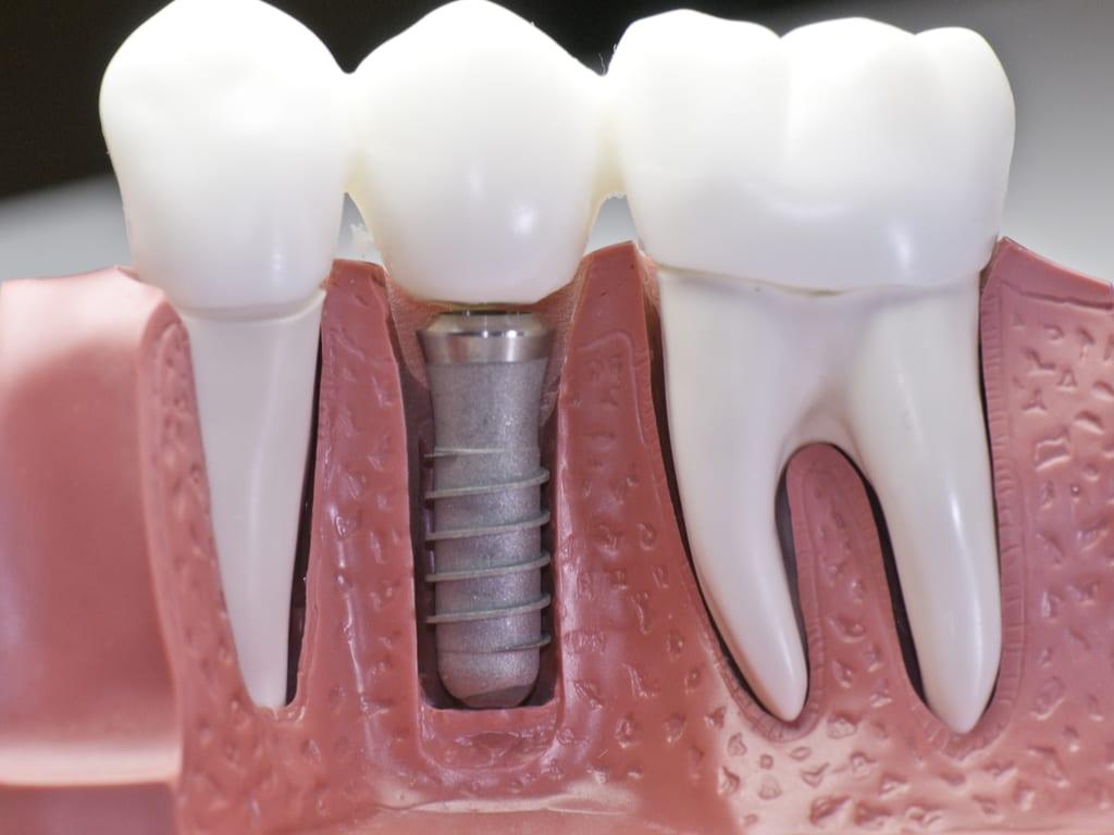 coupe machoire avec implant dentaire