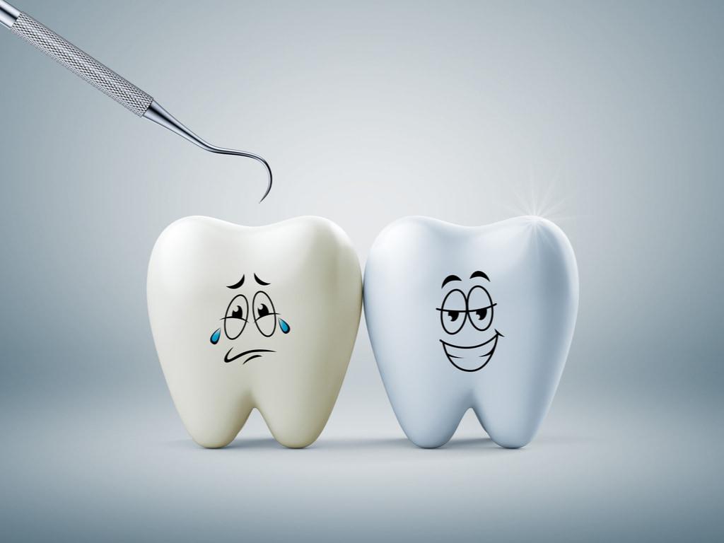 dent avec et sans plaque dentaire