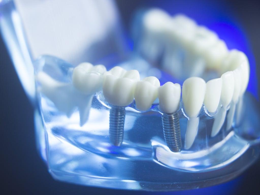 implant dentaire en bref
