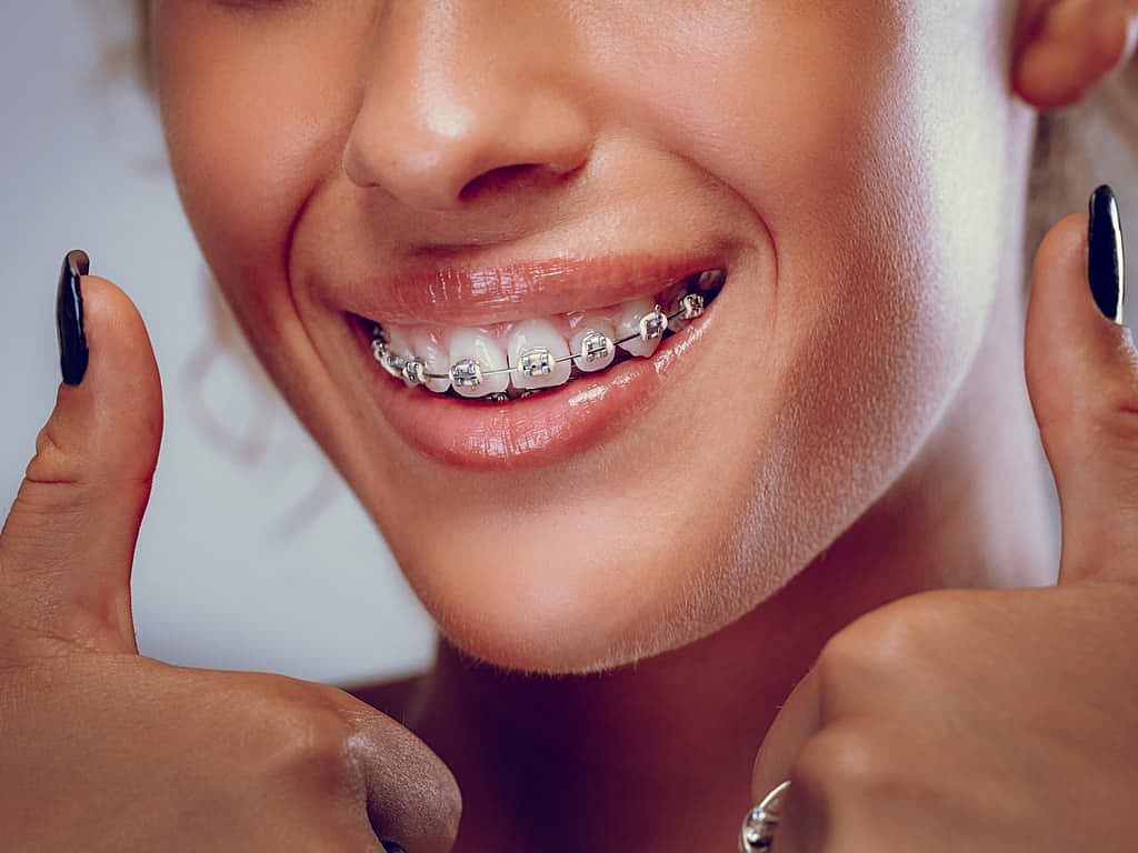 femme_contente_avec_son_appareil_dentaire