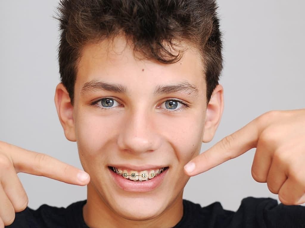 adolescent_portant_des_bagues_dentaires