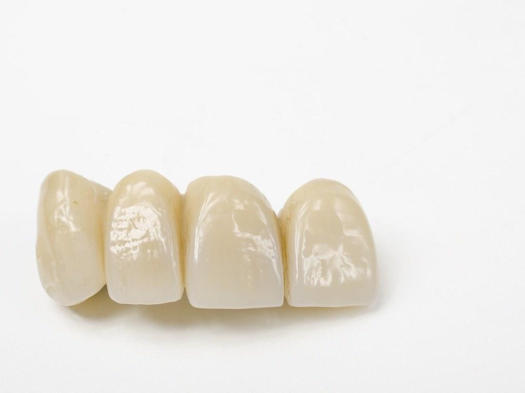 prothese_dentaire_sur_fond_blanc