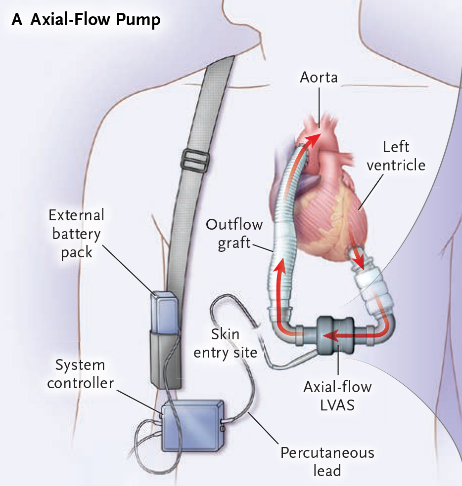 Efficacy And Safety Of Left Ventricular Assist Devices
