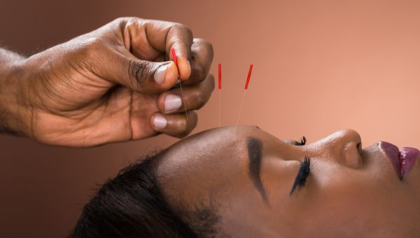 Acupuncture, Traditional Chinese Medicine, the acupuncturist, doctor is you
