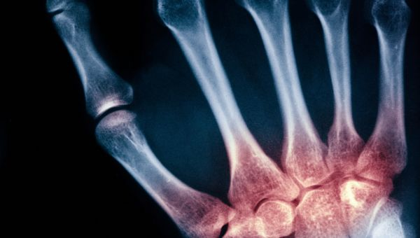 Is It Psoriatic Arthritis?