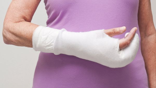 A broken bone could mean osteoporosis.