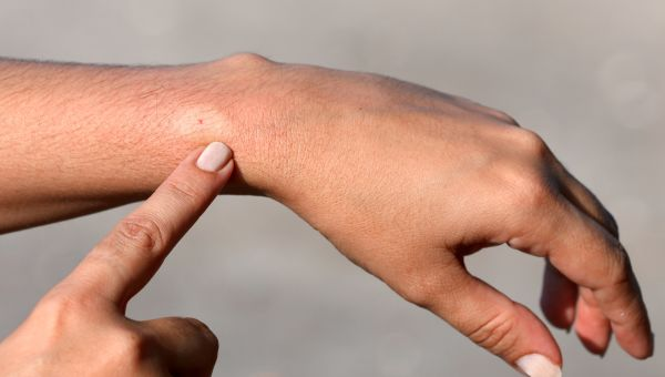 Ouch, What Bit Me? 10 Common Bug Bites | First Aid, Safety
