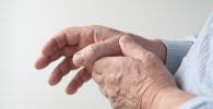 Living Well With Dupuytren's Contracture