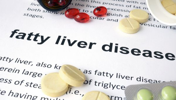 What You Need to Know About Fatty Liver Disease