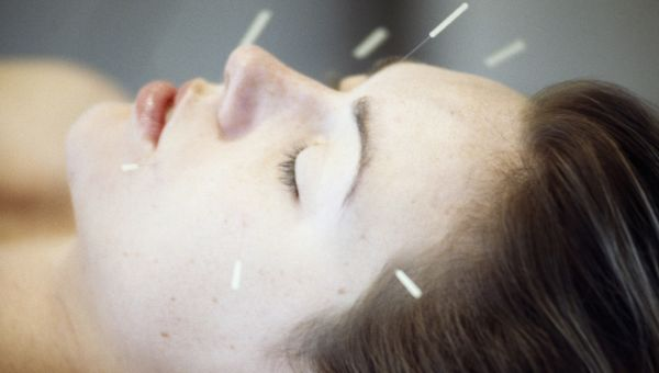 Acupuncture: Are You Missing the Point?