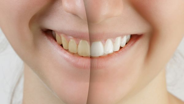 Teeth Whitening Tips and Secrets