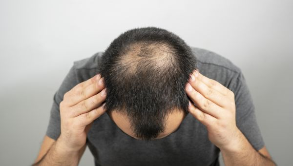 Is Testosterone Making You Go Bald?