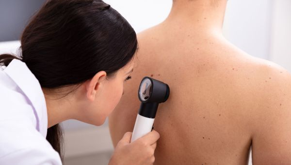 Why Skin Cancer Is on the Rise in Men