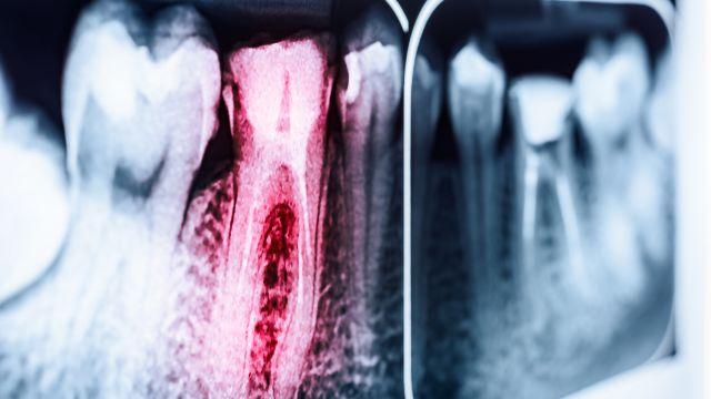 Are Dental X-Rays a Health Risk?