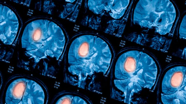Diabetes and Your Brain