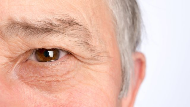 Droopy Eyelids: More Than Just Looks