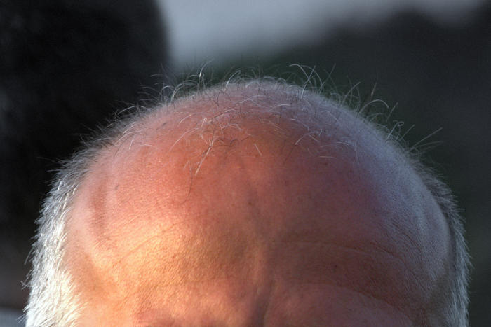 Bald men can't get goosebumps on their scalp. Picture: malehmann/Flickr